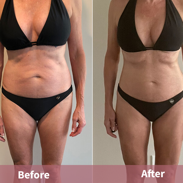 NeoraFit Real Results Image 1